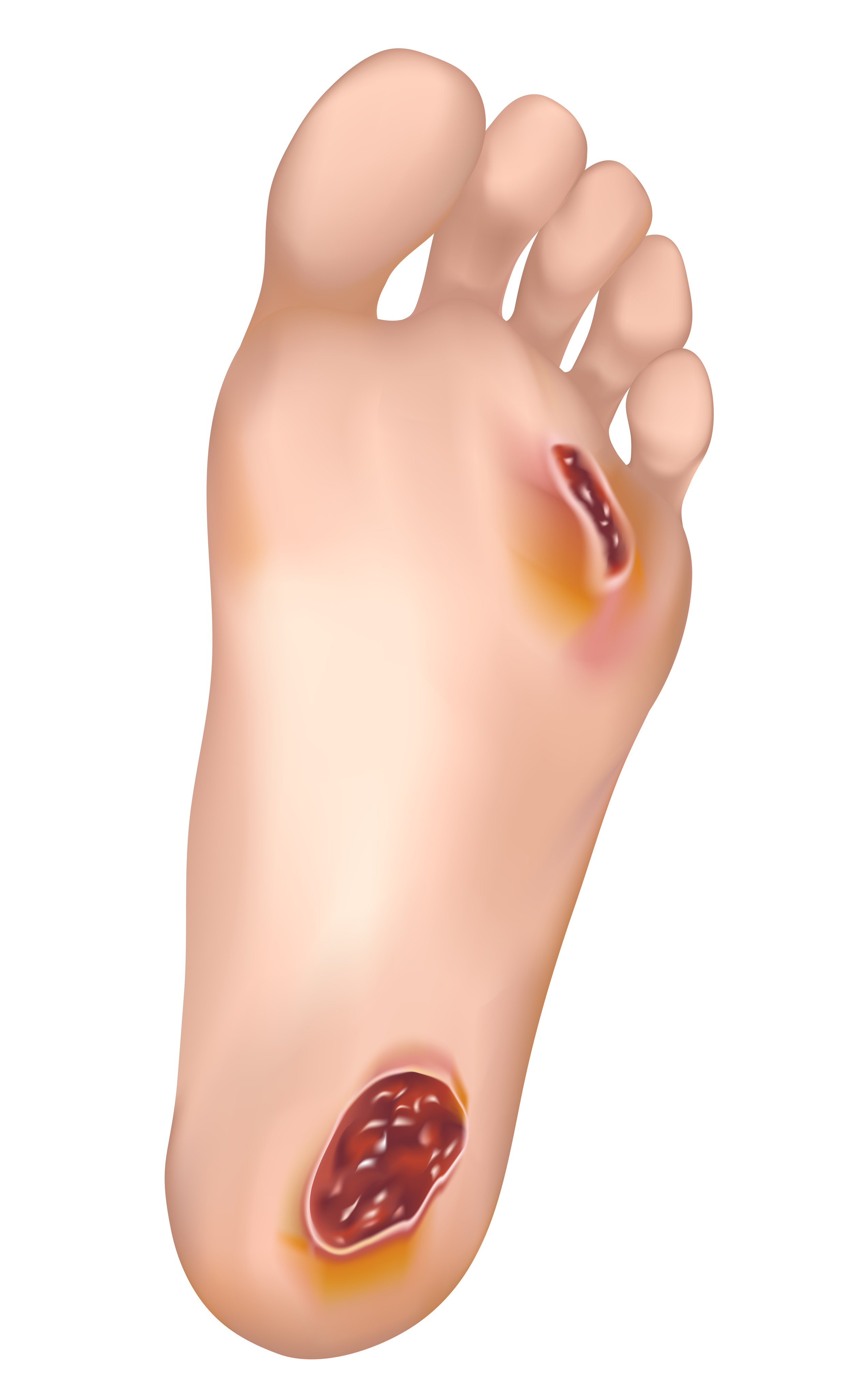 foot ulcer, diabetic wound care management in marquette, escanaba, upper peninsula, michigan