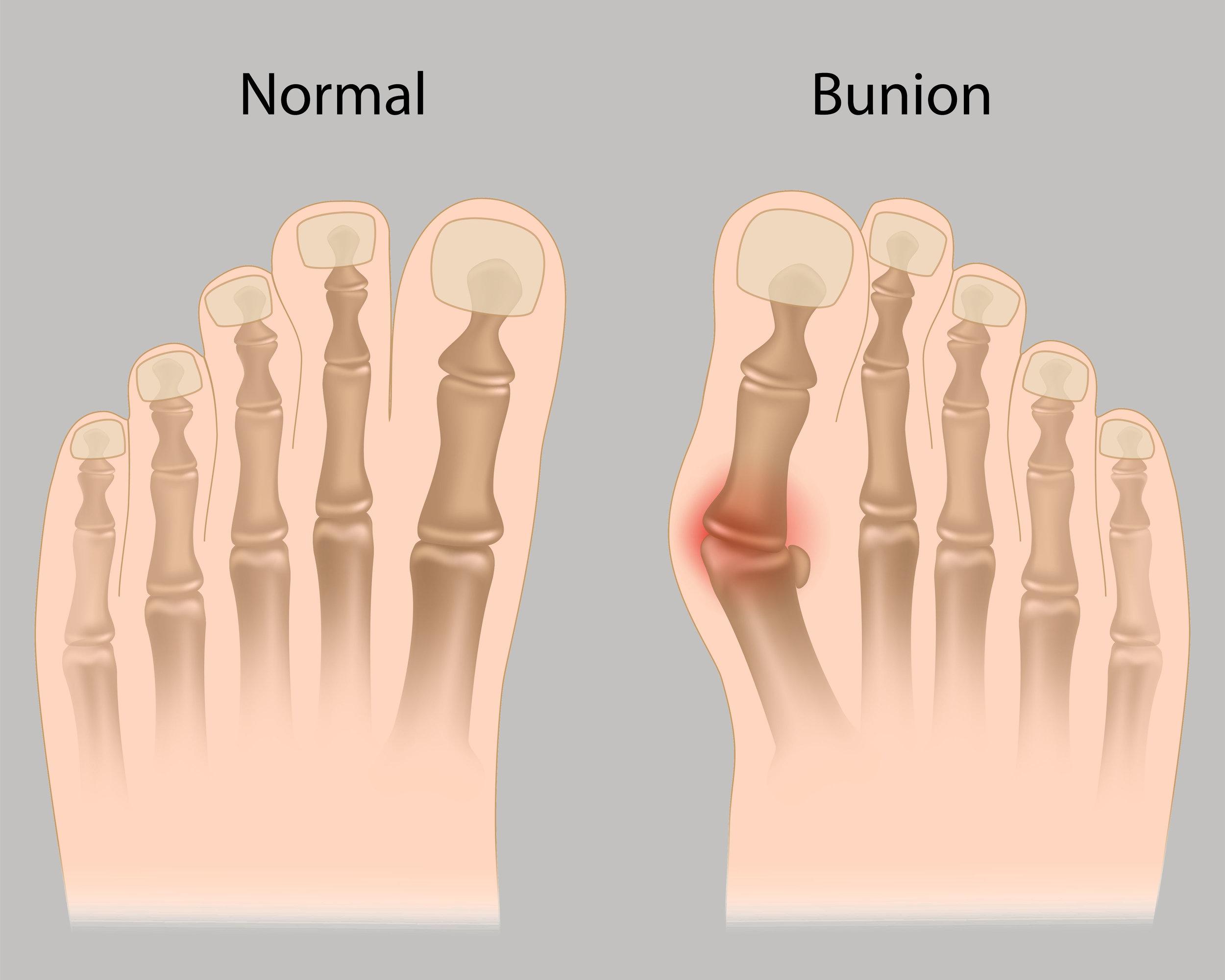 minimally invasive bunion surgery, bunionectomy - foot surgeon in marquette, escanaba, upper peninsula, michigan