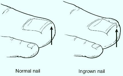 ingrown toenail doctor - treatment, podiatrist serving marquette, escanaba, upper peninsula, michigan