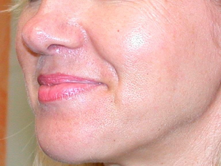 oily-pores-and-enlarged-pores-before-and-after-2.jpg