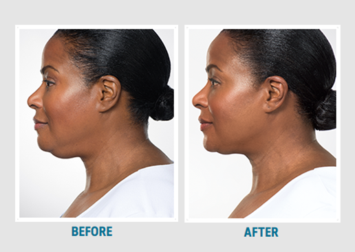 before after Kybella under the chin NO stats.png