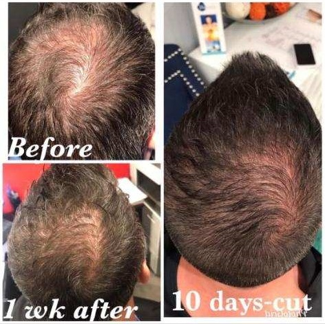 Exosomes hair growth.jpg