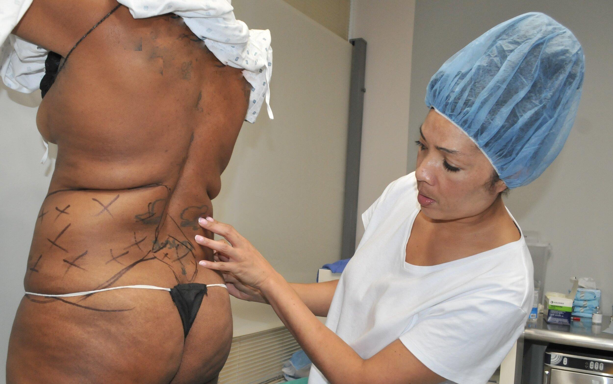 LH Dr Jing Jing marking patient for Vaser Lipo.jpg