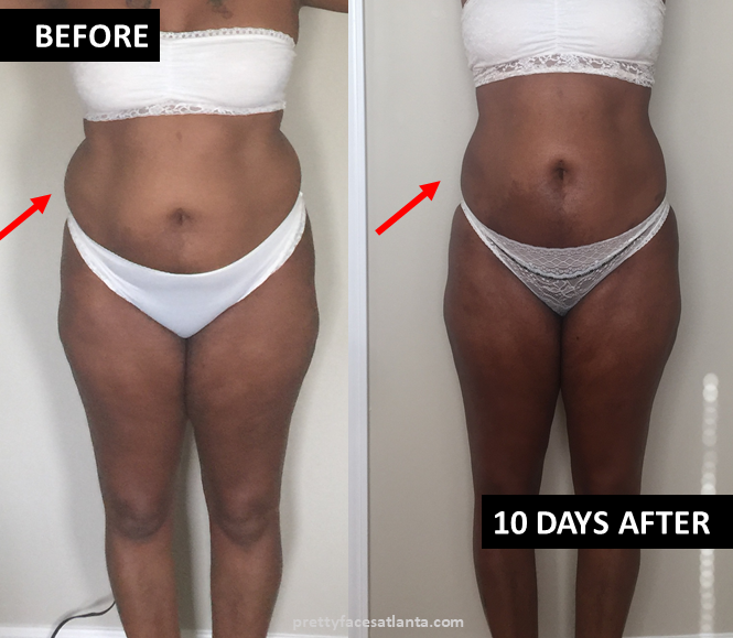 LH vaser lipo fat transfer belly before after 01.png
