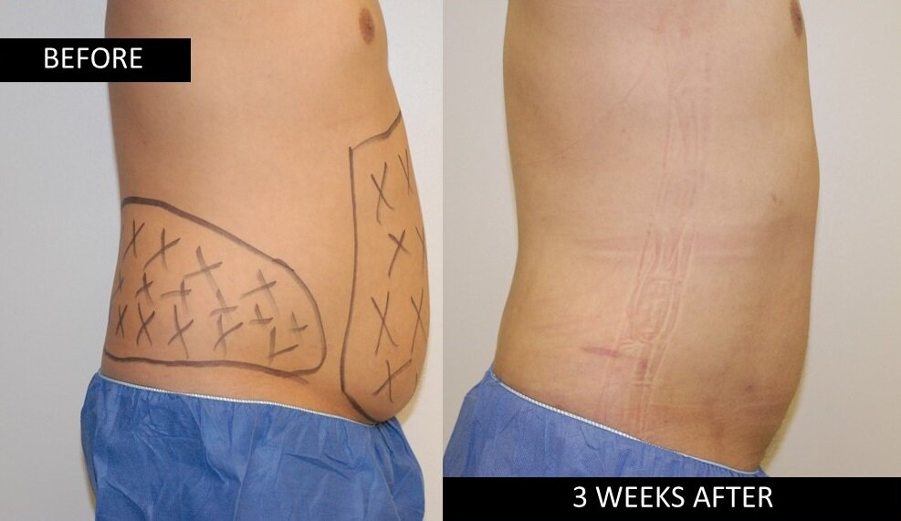 ri lateral abodminal view before after lipotherme surgery.jpg