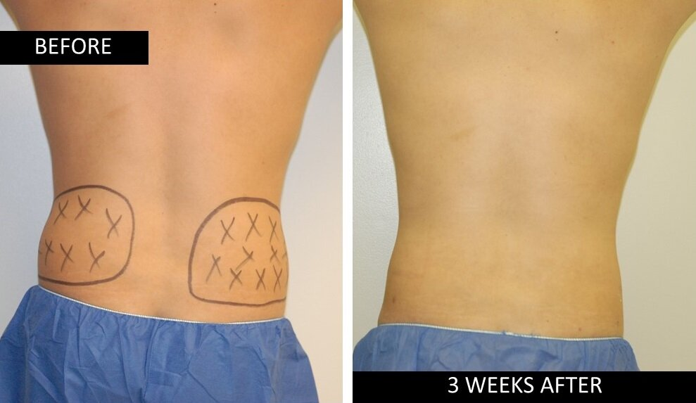 ri love handles before after lipotherme.jpg