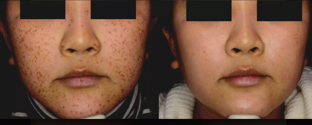picosure freckles before and after.png
