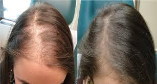 hair loss before and after exosomes female.jpg