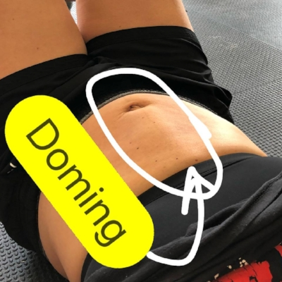 "Activation of only the rectus abdominis can result in doming, also known as coning.  This is when the linea alba cannot meet the demand of the intra-abdominal pressure that is being created interally, and is pushed outwards.  This can result in a ""leak"" in energy, and decreased function."