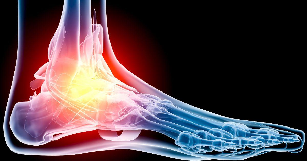 foot-pain 2.jpg