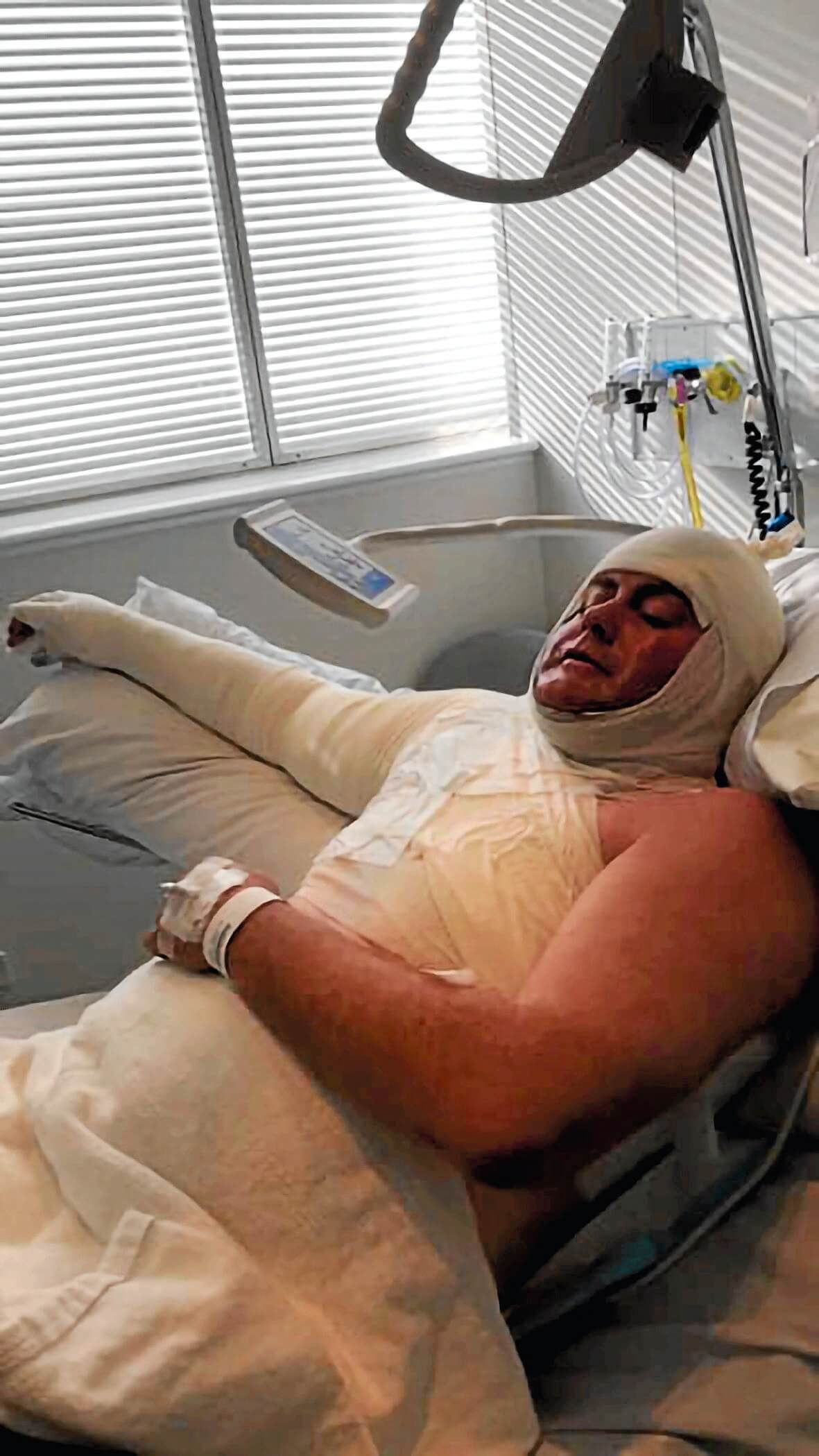 • Marcus Casey is recovering in the Royal Hobart Hospital from second and third degree burns to his body after an accident on Sunday afternoon.