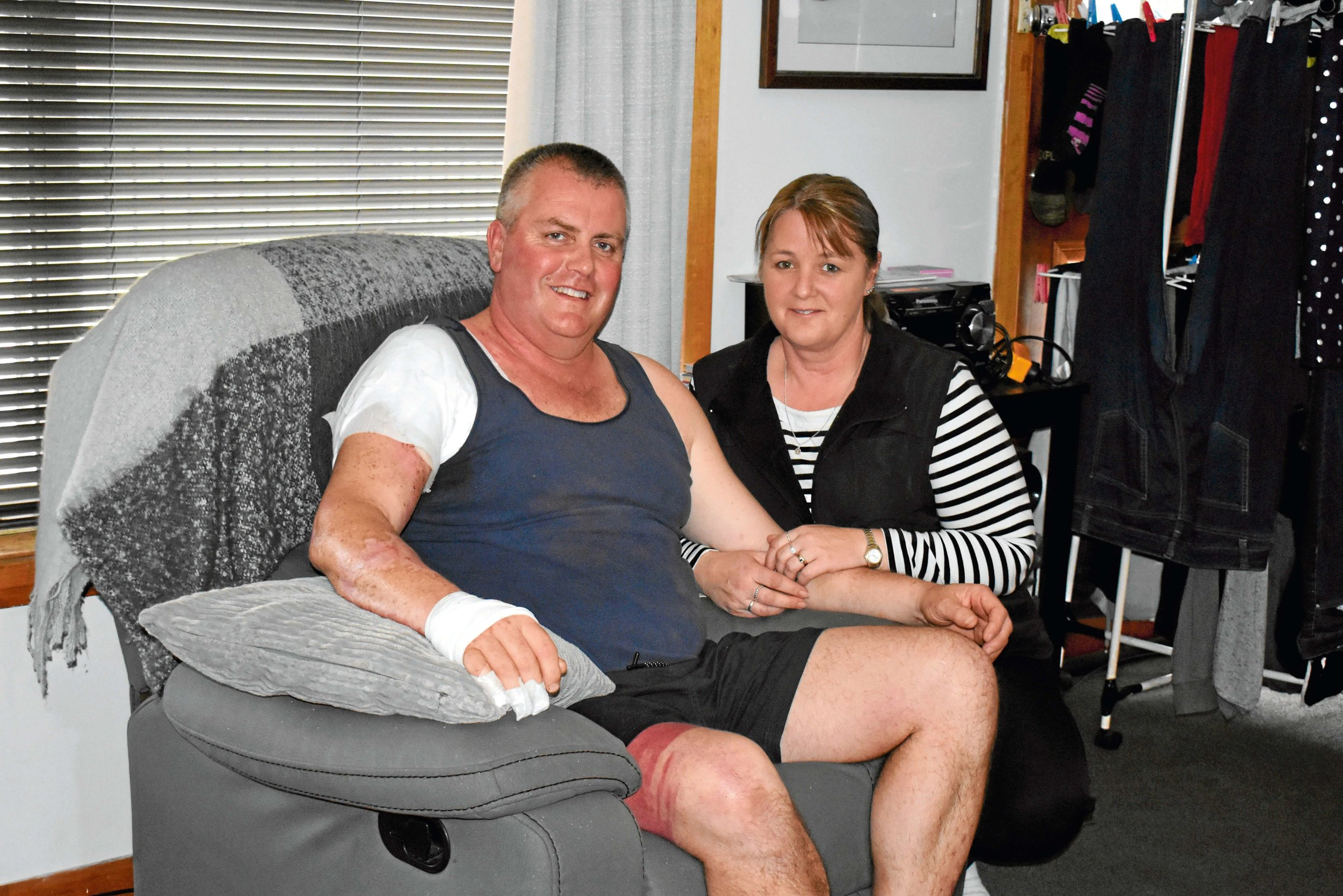 • Burn victim Marcus Casey with his wife Mandi at their home in Scottsdale.