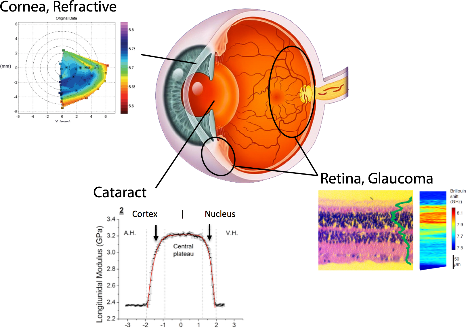 Biomechanics Imaging with BOSS will address a large range of ophthalmic indications.