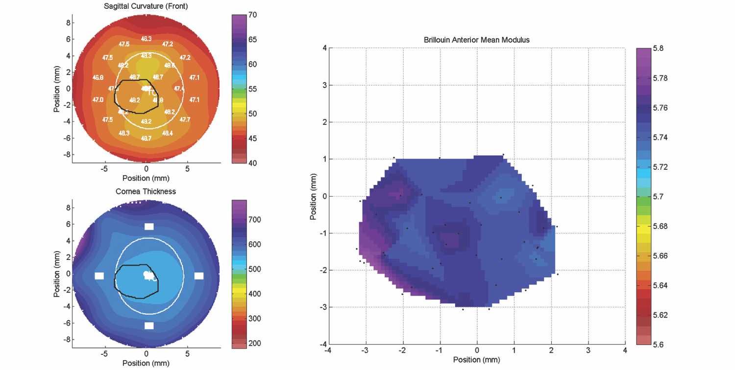 Stiffness maps (right image) will soon be a routine diagnostic for the assessment of structural integrity and physical properties of ocular tissues.