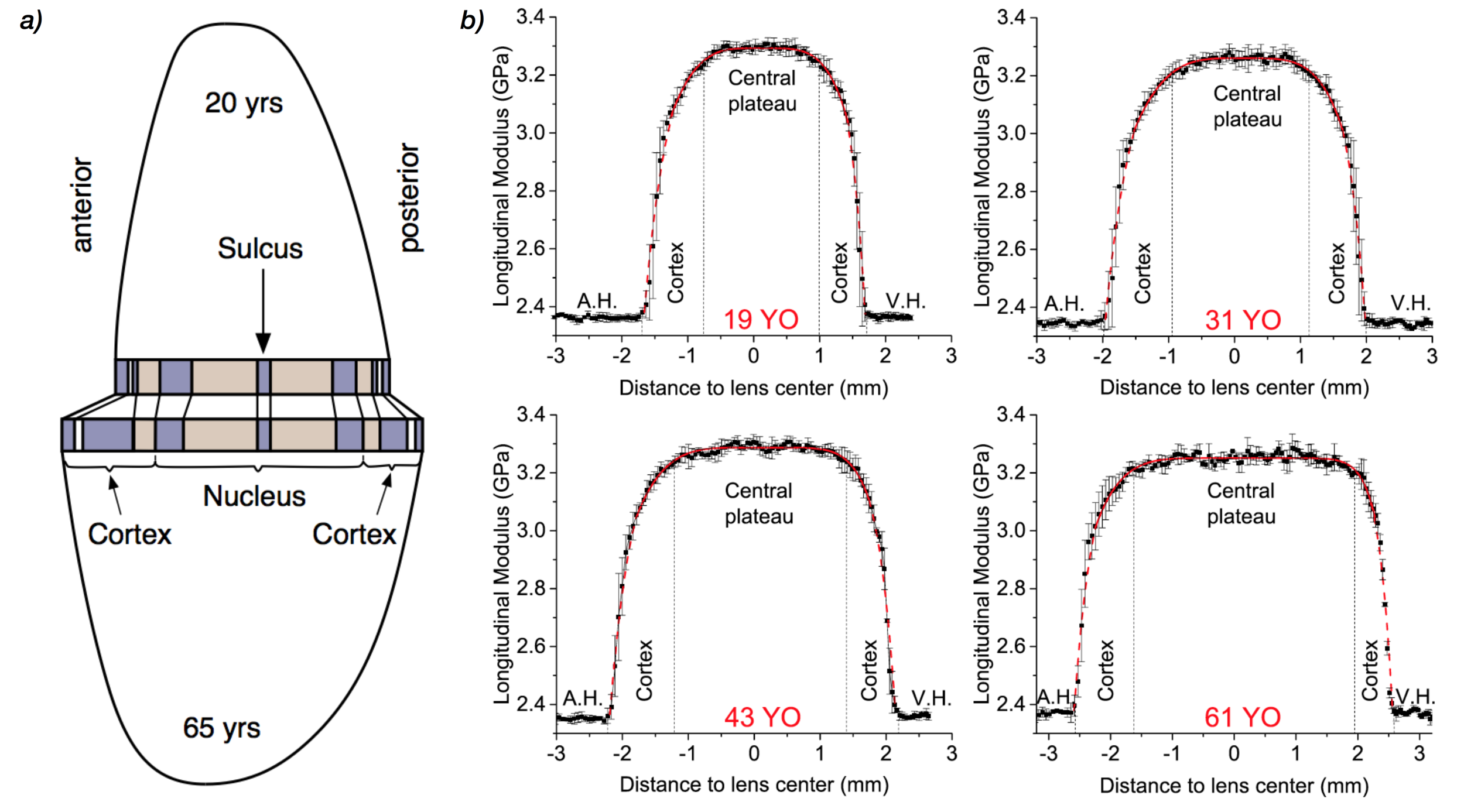 Age-related crystalline lens thickening. a) Model of thickening, b) Crystalline lens stiffness profiles measured with BOSS™ in 19-, 31-, 43-, and 61-year-old human showing the aqueous humor (A.H.), the vitreous humor (V.H.), the lens cortex, and lens nucleus plateau.