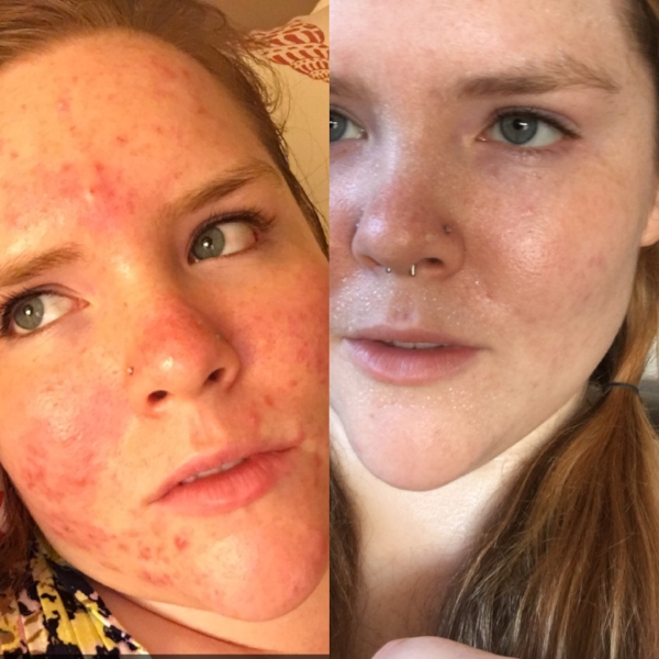This is the difference that using raw honey to wash my skin with did for my acne, no makeup!