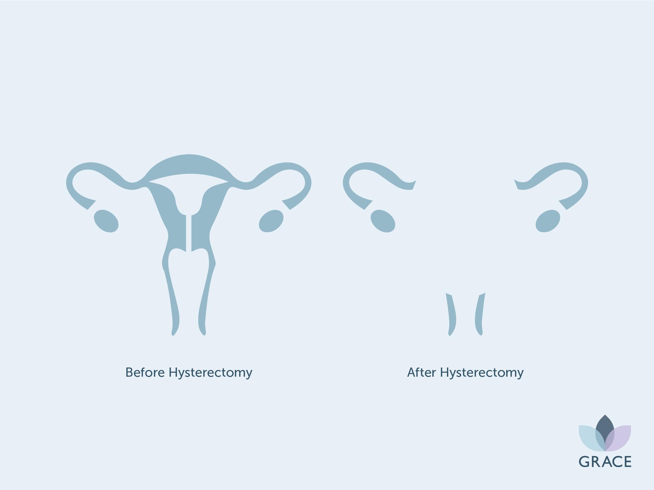 GR - Hysterectomy.jpg