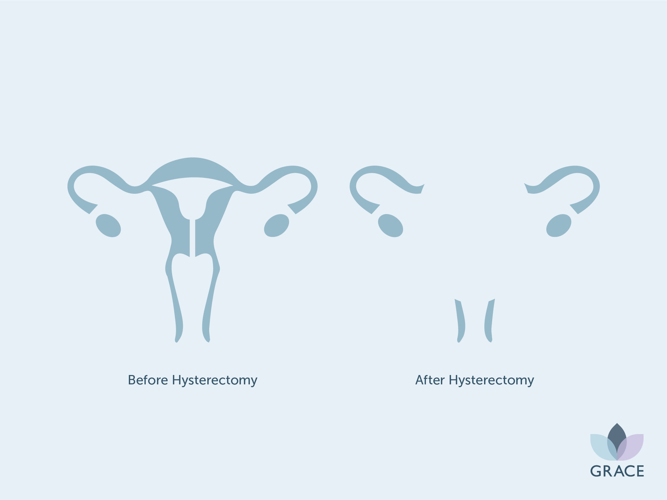 Female reproductive system before and after hysterectomy