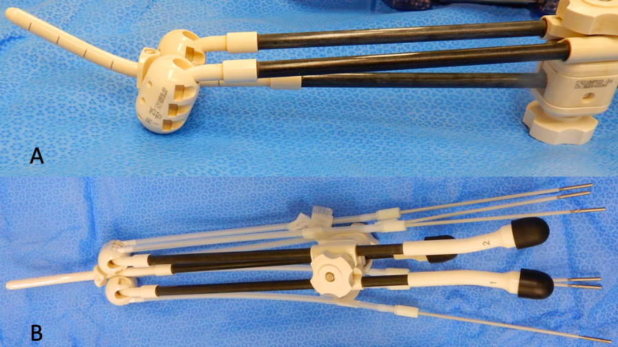 Figure 1 – Photograph of the equipment used for cervical brachytherapy. (A) is the basic equipment with no needles and (B) is the equipment with extra needles attached to deliver a higher dose of radiotherapy