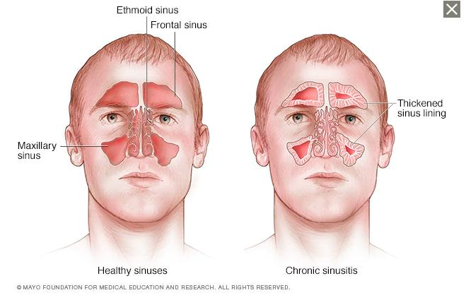 sinuses.png