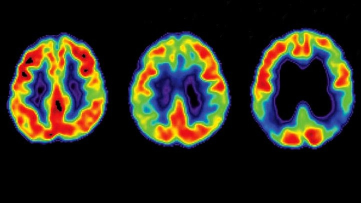 Alzheimers-Progression-RM-722x406.jpg