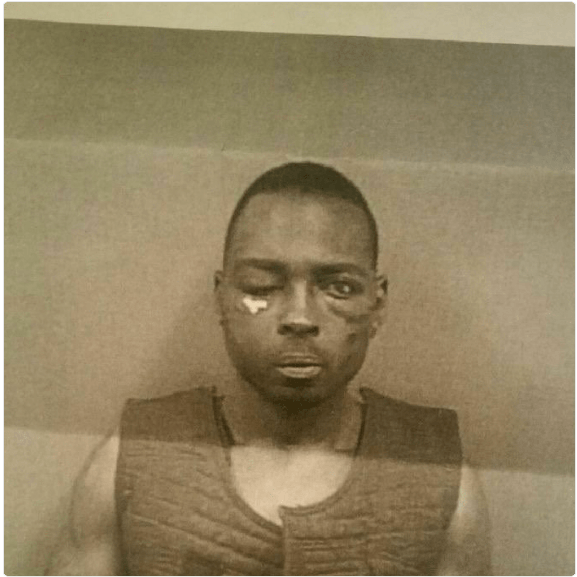 Erie, PA (January 28, 2016) Image of Montrice Bolden's injuries that were sustained by Erie Police Department Officers DeLuca, Stadler, Sack, and Bush (two other officers can not be named at this time). This photograph was taken two weeks after the arrest. Bolden remains in the Erie County Prison. (Photo Credit: Lauren Benzo )