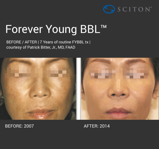 BBL - dark forever young before and after 5.jpg