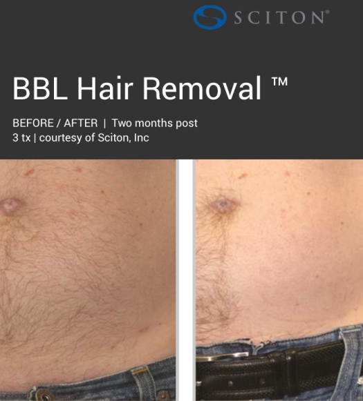 BBL - dark hair removal before and after 2.jpg