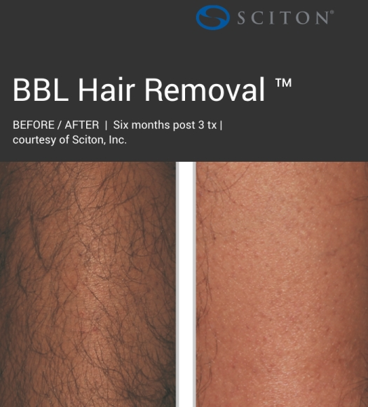 BBL - dark hair removal before and after 3.jpg
