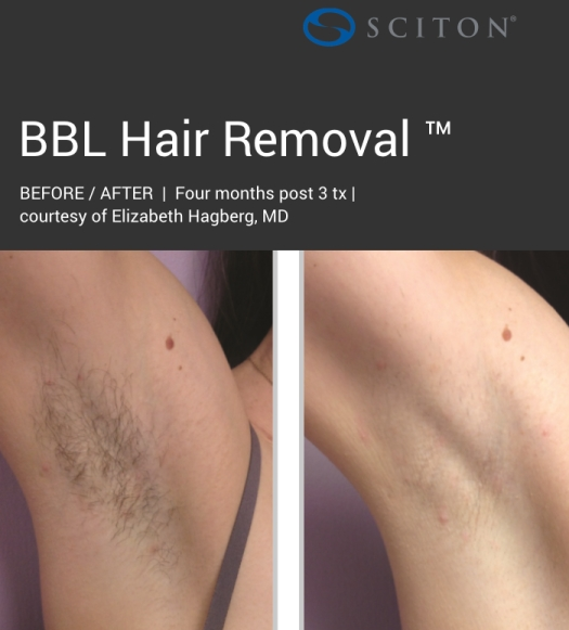 BBL - dark hair removal before and after 4.jpg