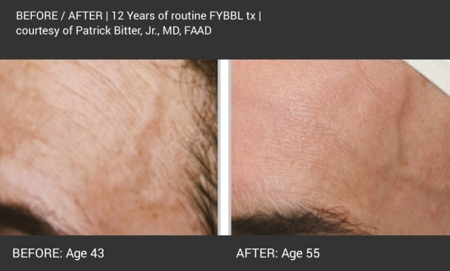 BBL - dark forever young before and after 4.jpg