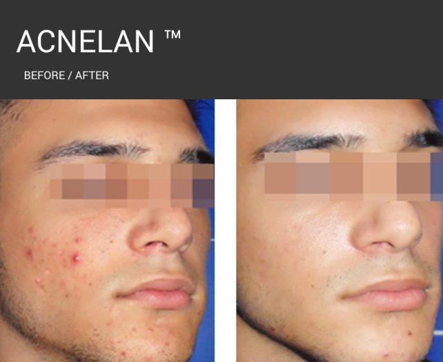 Acnelan - dark before and after 1.jpg