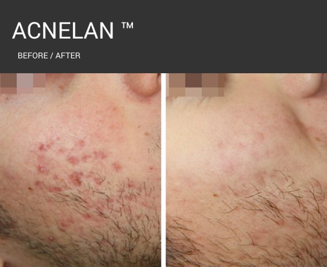 Acnelan - dark before and after 2.jpg