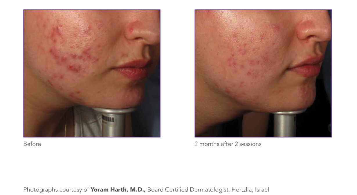 cystic acne.png