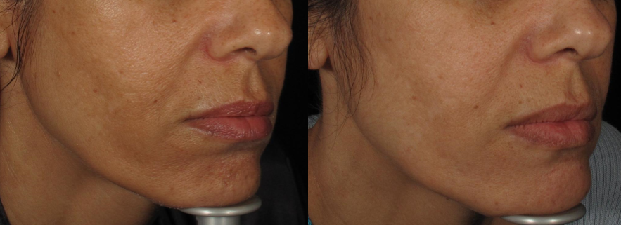 Treating Melasma + Skin Texture With RF Fractional Skin Resurfacing (FSR)