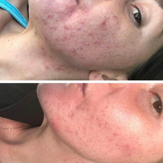 Acne Treated with Acnelan Program