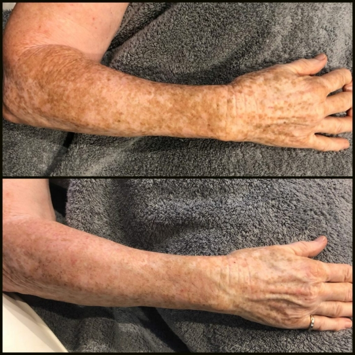 Sun Spots and Sun Damage Treated With BBL