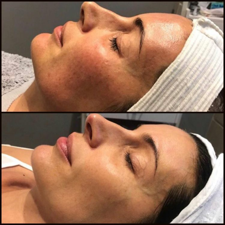 Pigmentation Targeted With BBL
