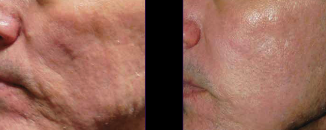 Scarring Treated With Intensif - Radio Frequency Microneedling