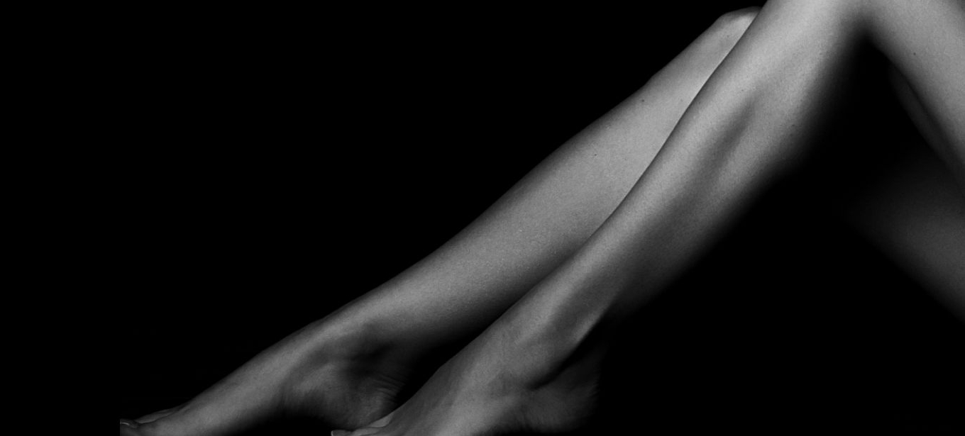 Microsclerotherapy  (Spider Vein Removal)