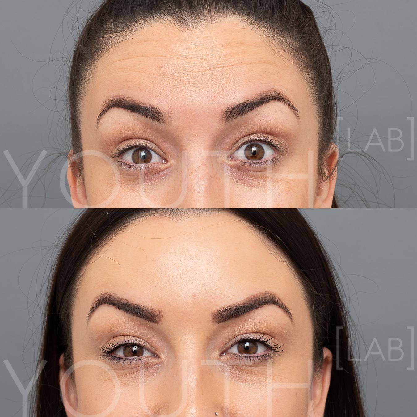 TASH K - anti-wrinkle Forehead B&A.jpg