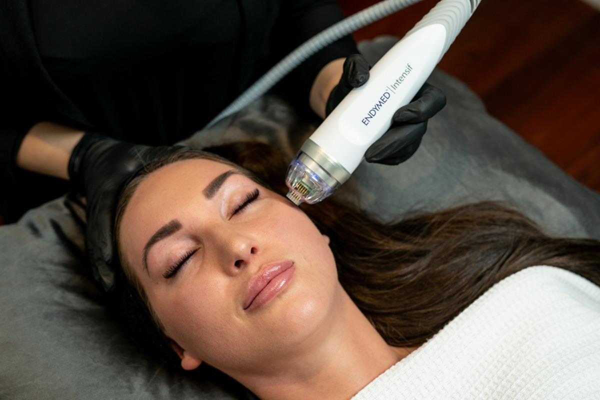 Intensif RF Micro needling on female