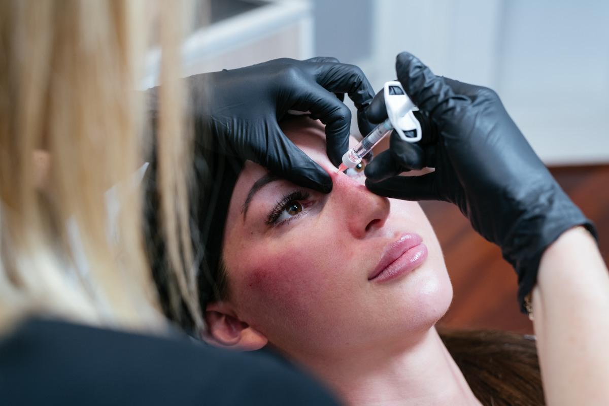 Dr Kate performing rhinoplasty