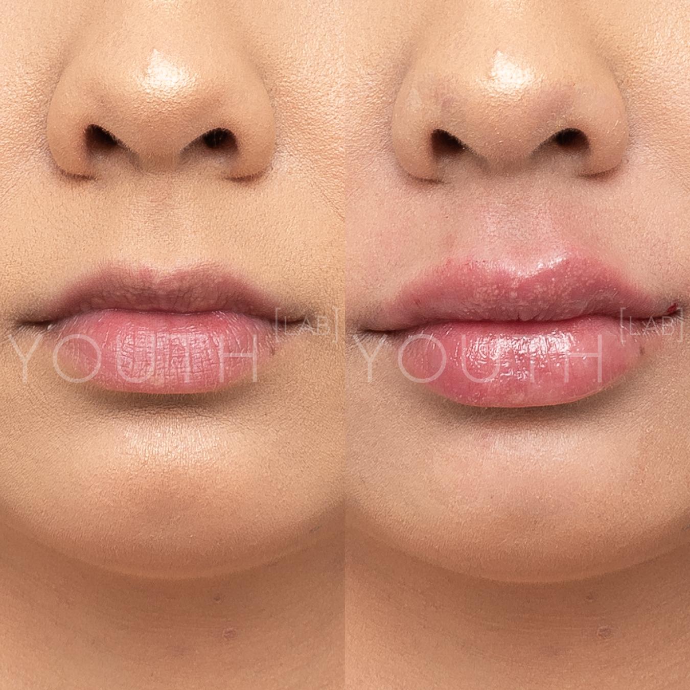 RG YL - lips 1ml 1.jpg