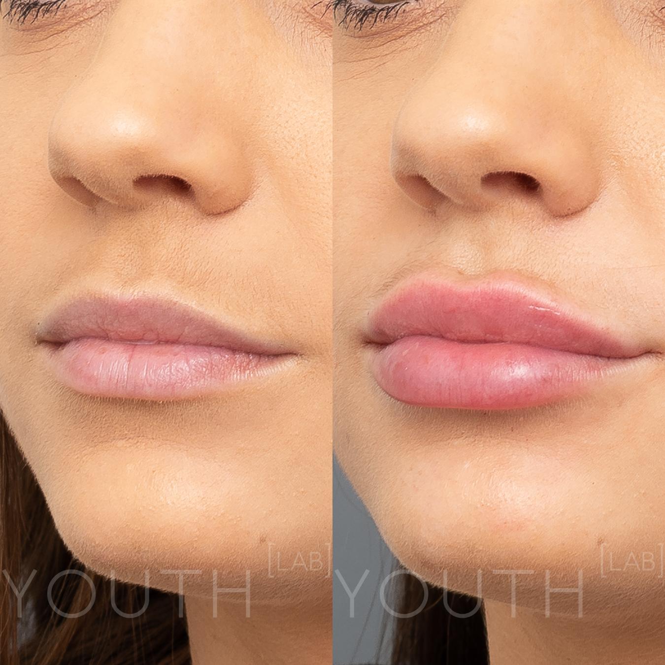 VA YL - lips B&A 3.jpg5