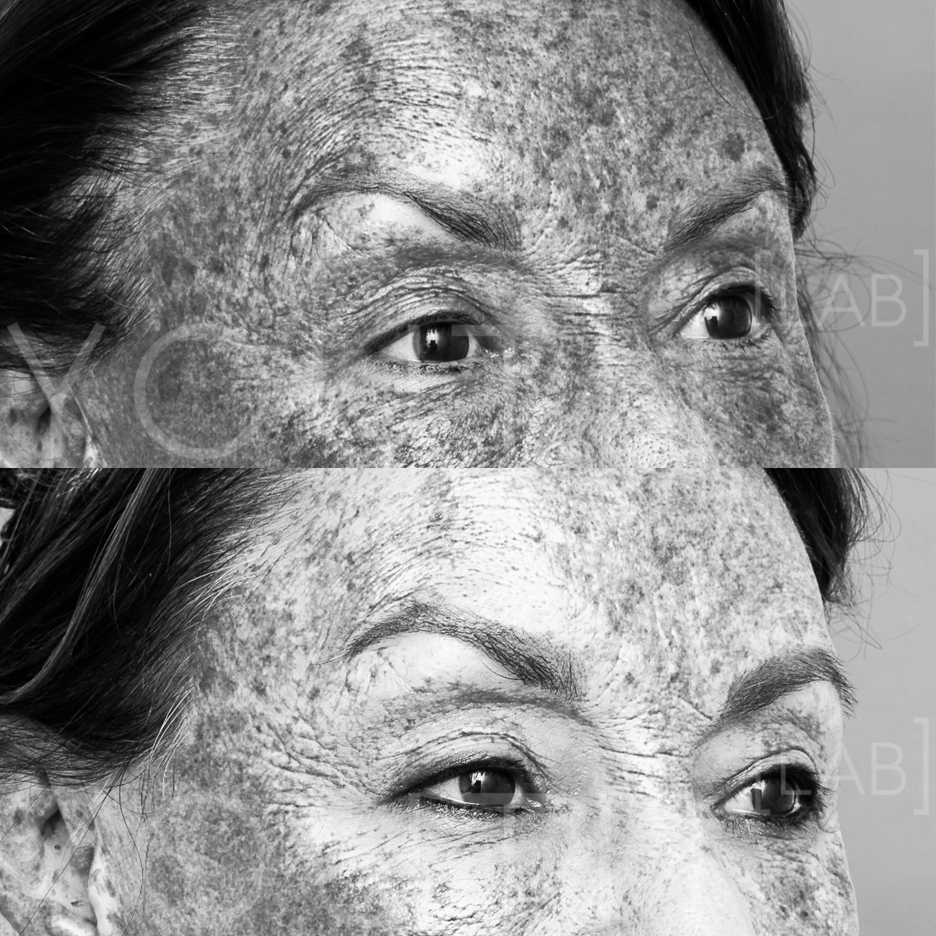 SP - BBL melanin filter B&A one treatment.jpg