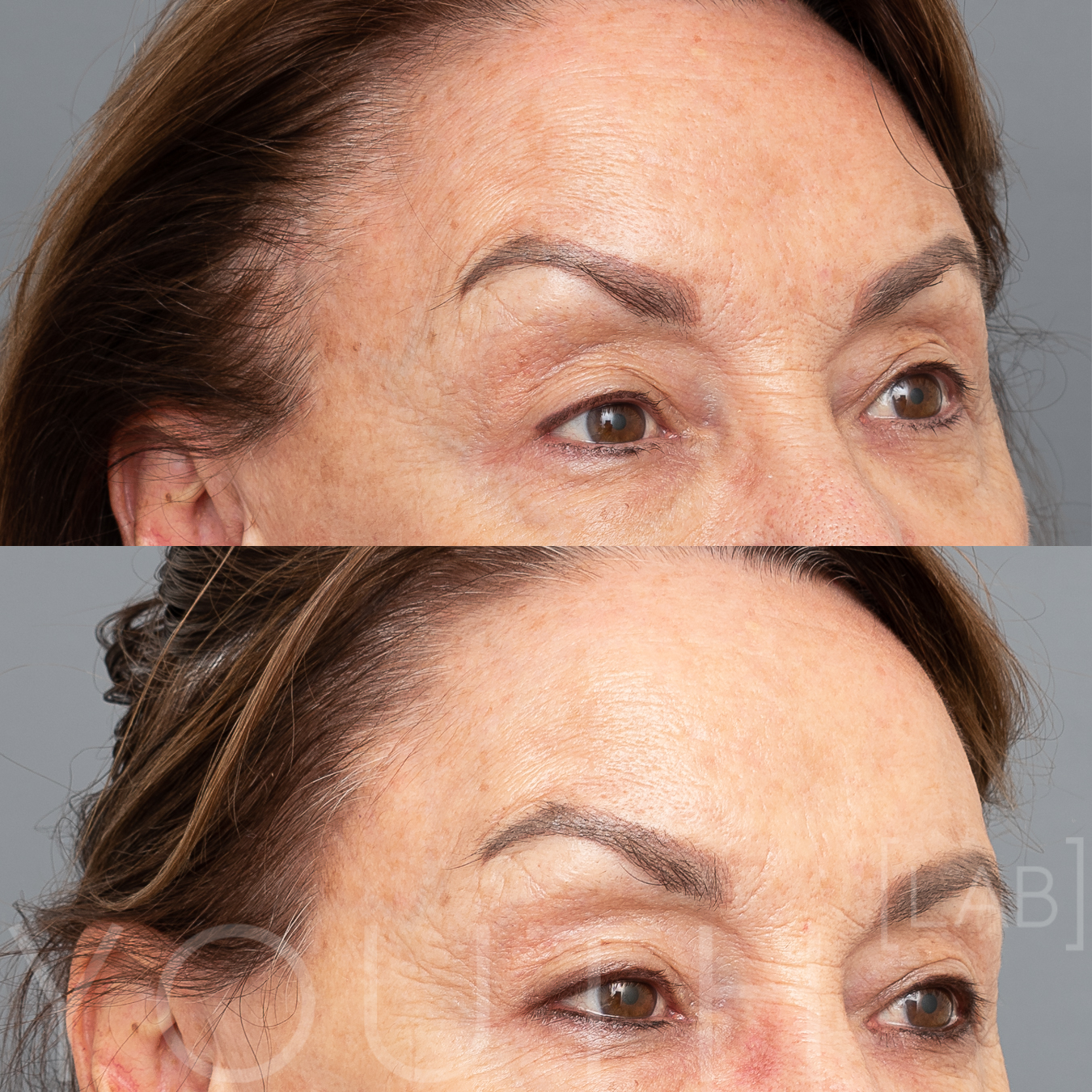BBL Photorejuvenation - 4 weeks post    1 treatment. Raw image.