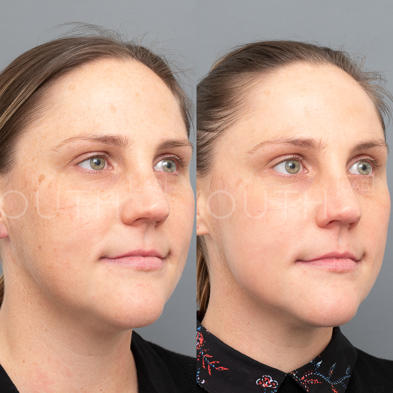 BBL Photorejuvenation - 4 weeks post    1 treatment. Raw image