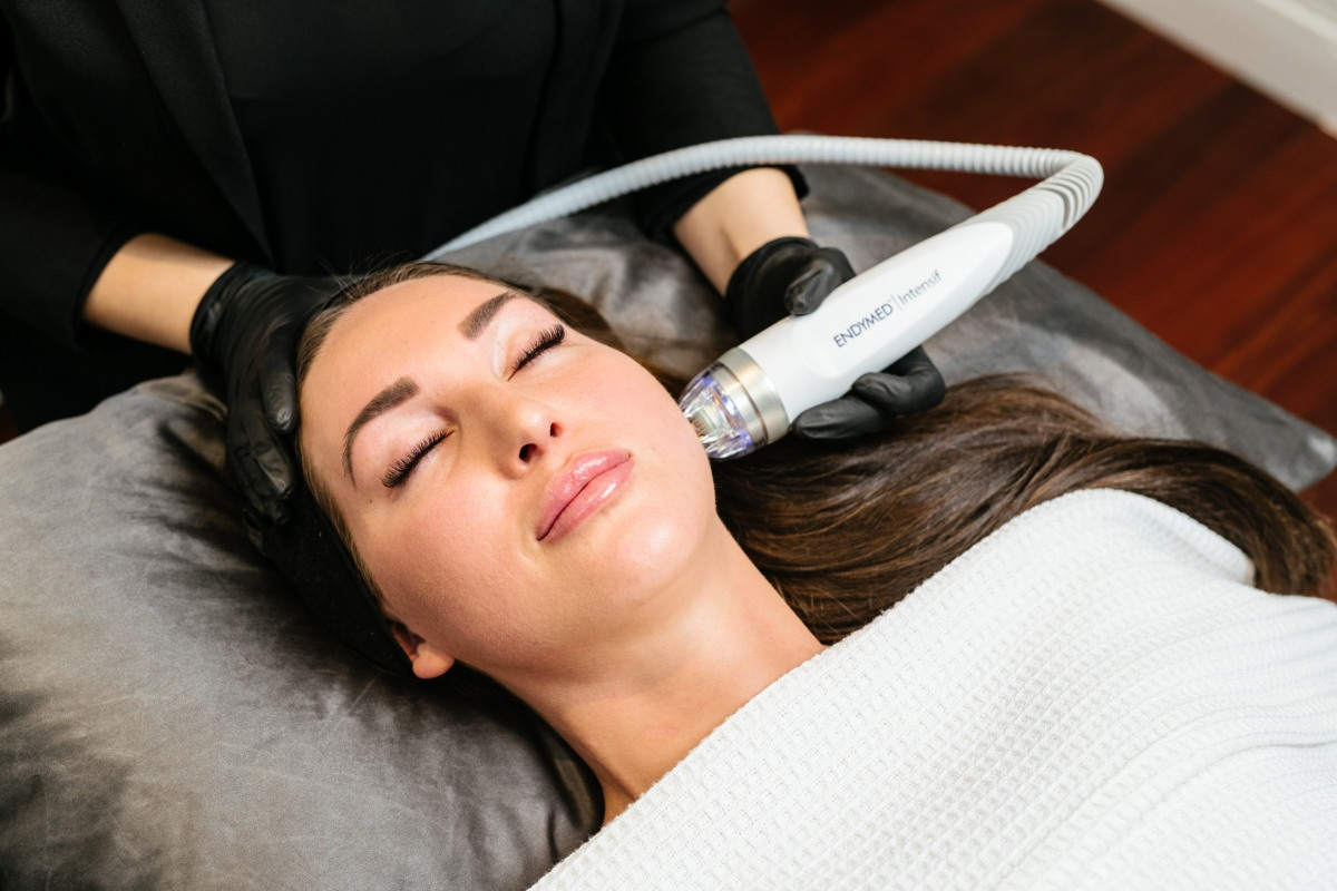 Radio Frequency Microneedling -