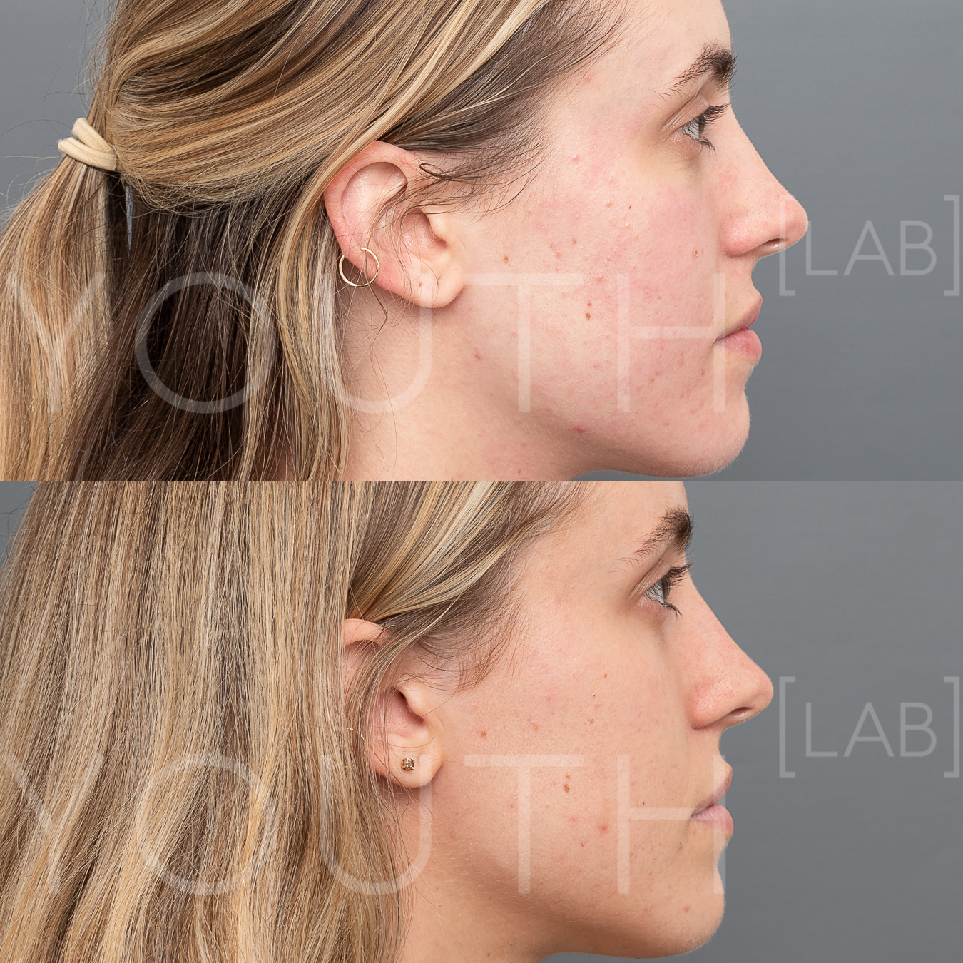 CT INTENSIF NEEDLING B&A 1.jpg